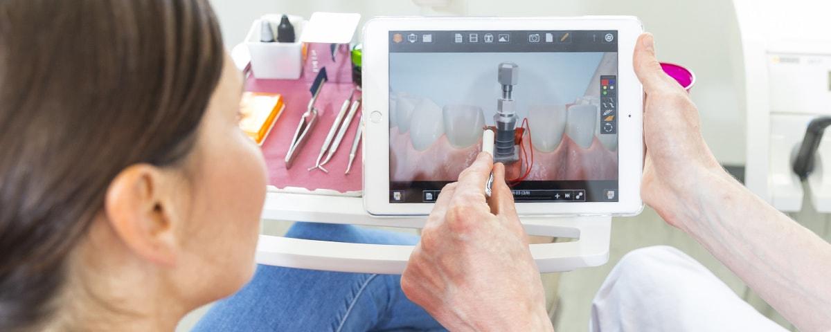 Dr. Rennert & Kollegen - Implantate